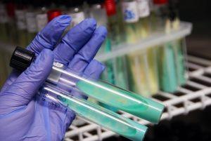 ręka w rękawice lateksowej z dwoma fiolkami do badania laboratoryjnego